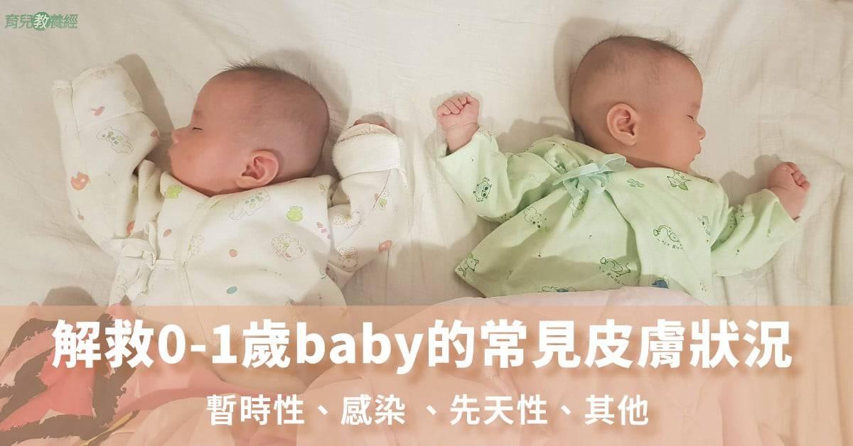 解救0-1歲baby的常見皮膚狀況