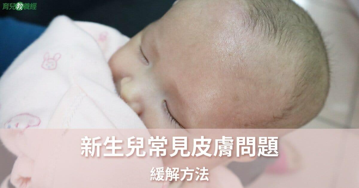 新生兒常見皮膚問題